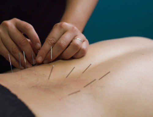 Dry Needling Is The Next Big Thing In Physical Therapy
